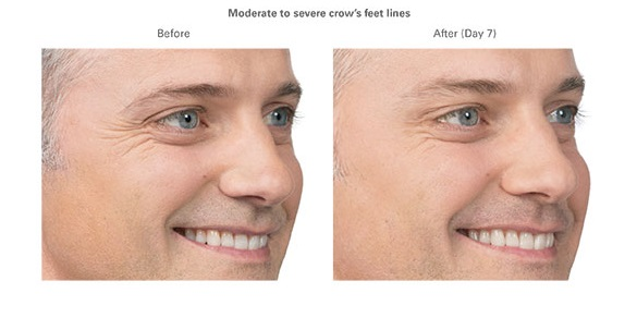 Botox for Men.