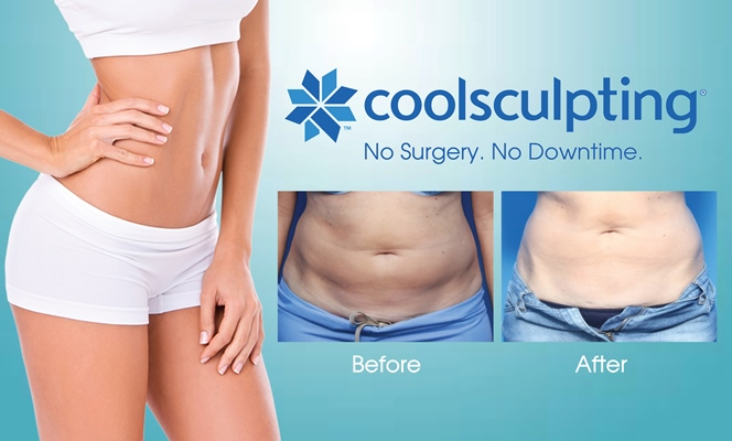 Coolsculpting in Downtown Denver