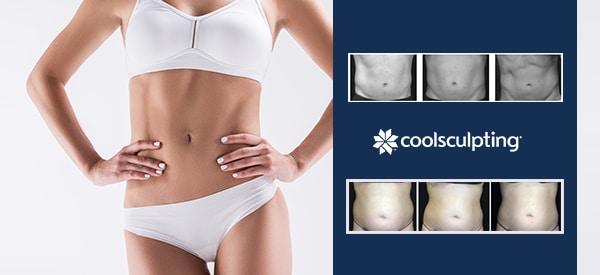Coolsculpting + M'lis Contour Bodywrap