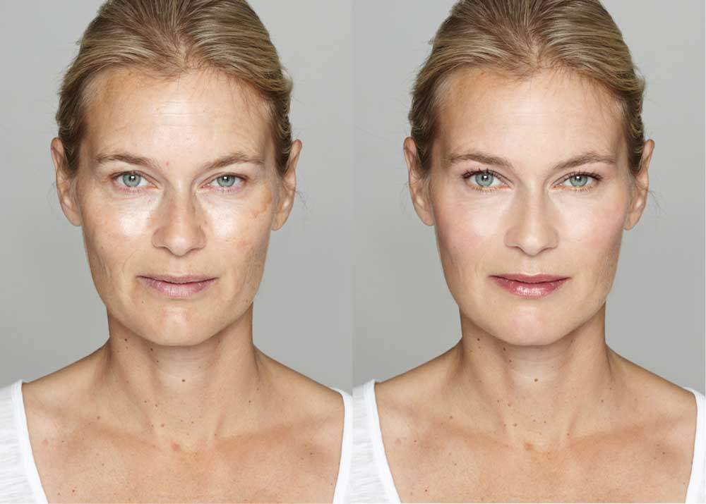 Microneedling Makeover