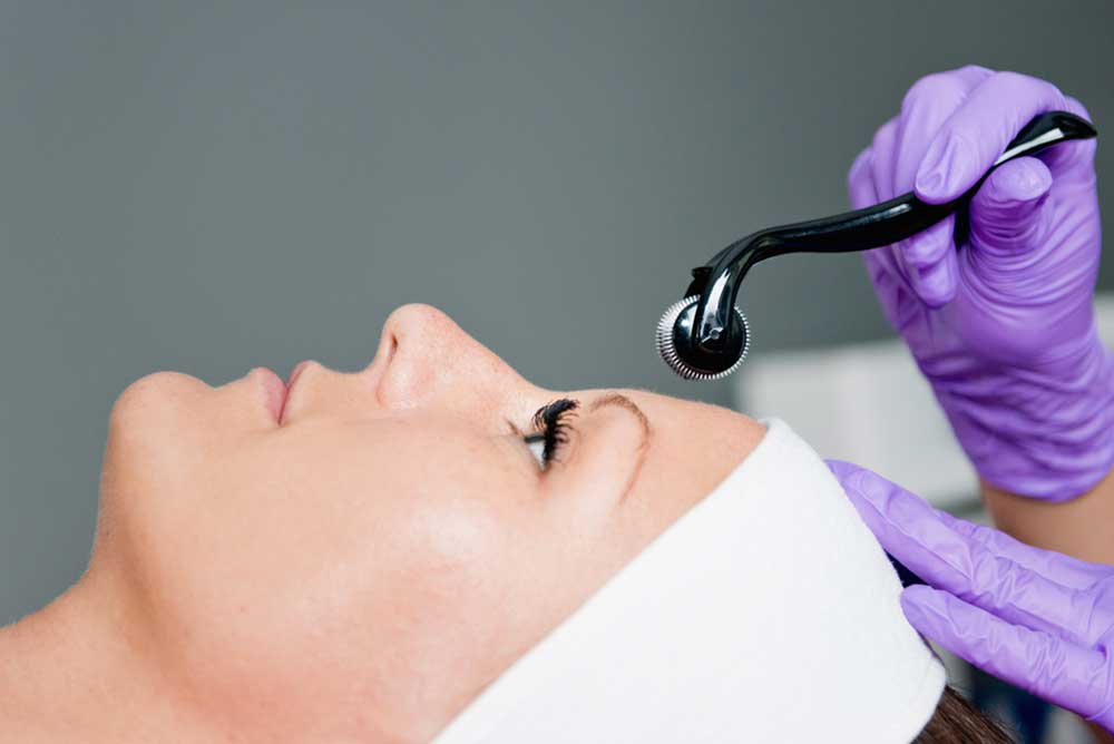 Microneedling roller treatment on face