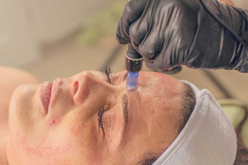 Microneedling treatment on a woman face.