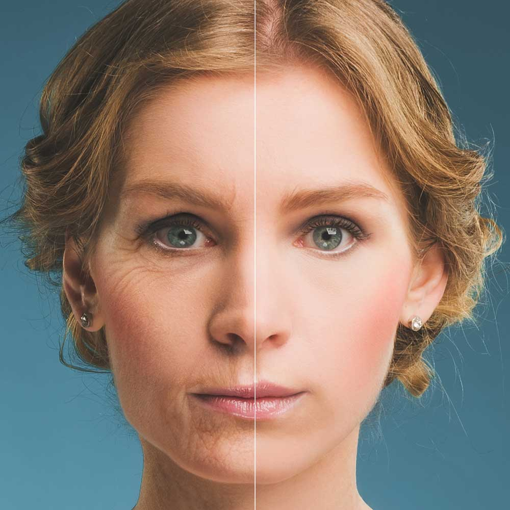 Portrait of a woman before and after microneedling.