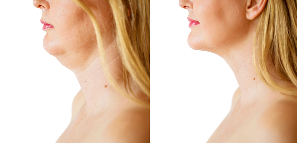 Coolsculpting before and after double chin