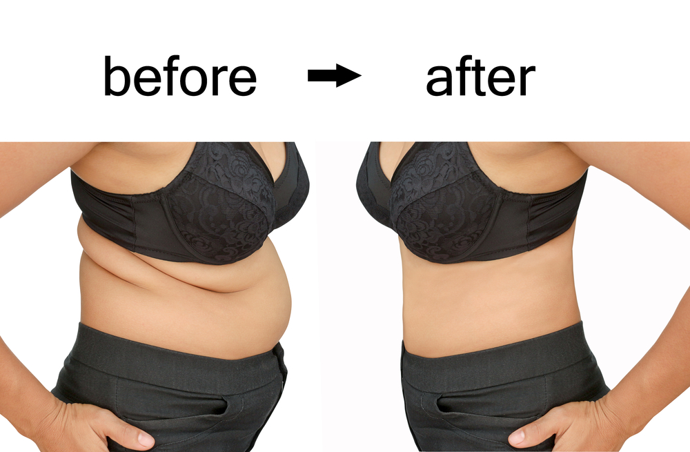 Woman's body before and after coolsculpting
